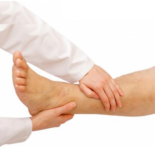 λεμφοίδημα, θεραπεία, επέμβαση, φυσικοθεραπεια, λεμφικο οιδημα, μαστεκτομη